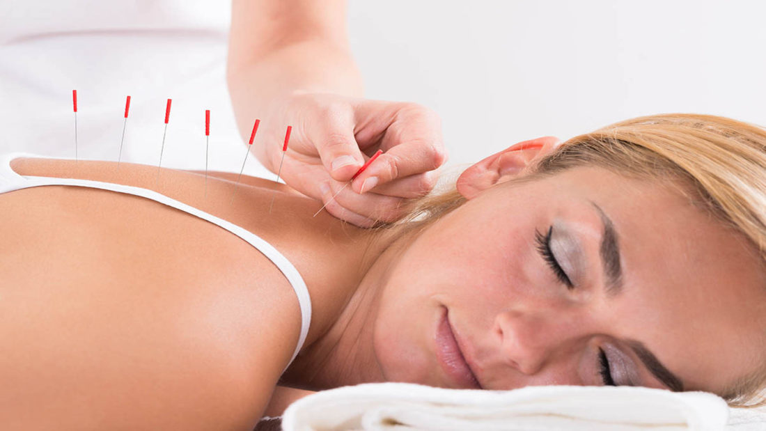 al-Specialists - Acupuncture